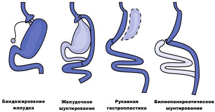 Различные виды бариатрических операций