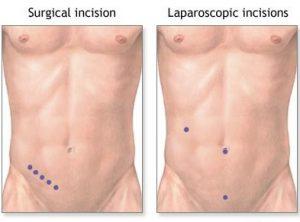 appendicit-operaciya2