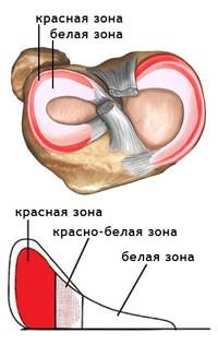 Изображение - Шов мениска коленного сустава 444